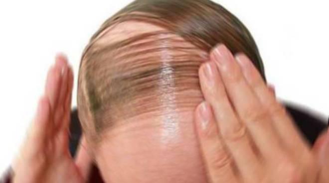 Cortisone e ricrescita capelli