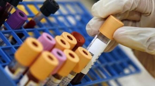 Modica, Giornata mondiale contro l'Aids. Apre ambulatorio al