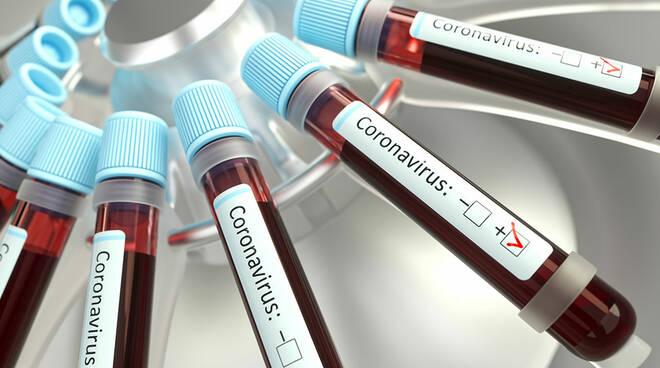 Test sierologici sui donatori di sangue